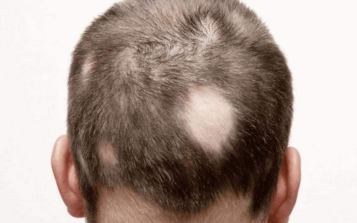 Haarverlust beim Mann Arten und Ursachen