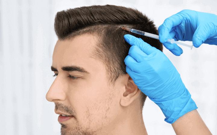 Haaverlust beim Mann Behandlung