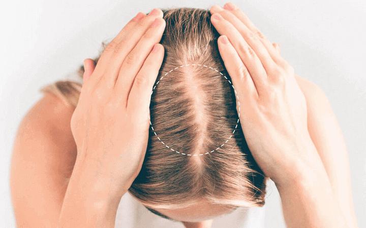 Titelbild Androgenetische Alopezie