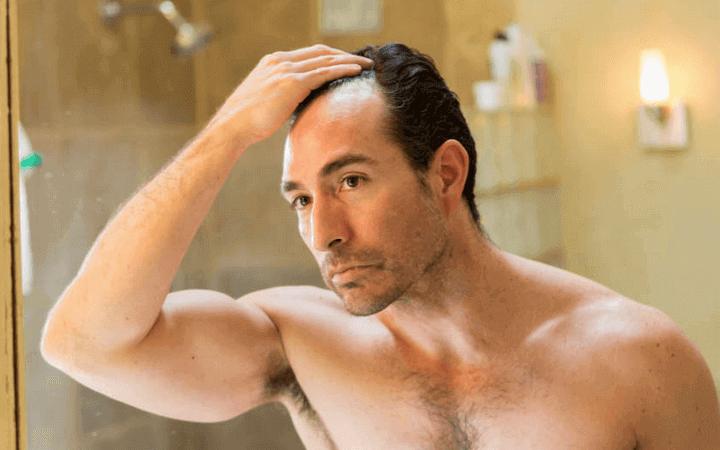 Titelbild Haarverlust beim Mann