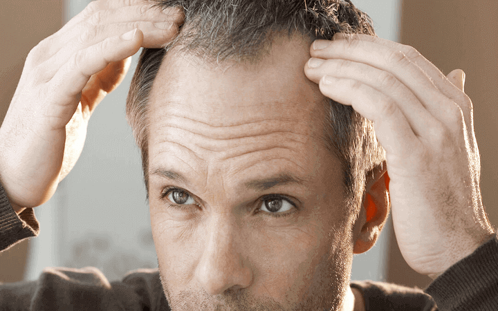 Was ist eine androgenetische Alopezie